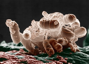 Colorized low-temperature electron micrograph of a cluster of E. coli bacteria. Photo by Eric Erbe, Colorization by Christopher Pooley. USDA. http://www.flickr.com/photos/microbeworld/5981923914/